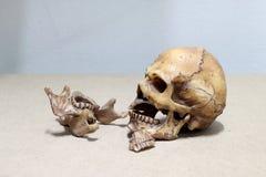 Dente com cárie, crânio humano quebrado dos dentes no fundo de madeira - ainda vida Fotografia de Stock
