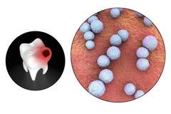 Dente com cárie dental Imagens de Stock
