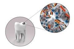 Dente com cárie dental Imagem de Stock
