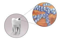 Dente com cárie dental Imagens de Stock Royalty Free