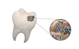 Dente com cárie dental Imagem de Stock Royalty Free