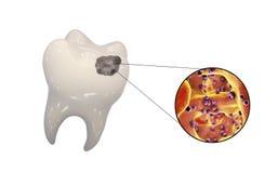 Dente com cárie dental Foto de Stock
