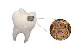 Dente com cárie dental Fotografia de Stock