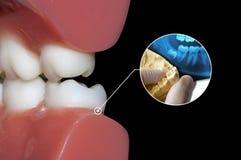 Dente del giudizio di diagnosi di manifestazione del dentista Fotografia Stock Libera da Diritti
