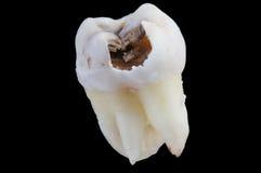 Dente deteriorado foto de stock