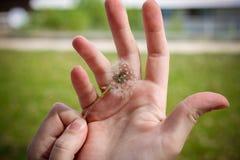 Dente di leone nel woman& x27; mano di s su erba verde nel fondo Fotografie Stock Libere da Diritti