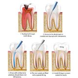 Dente distrutto carie riparato con una corona o un processo di riempimento dell'illustrazione di vettore del dente illustrazione di stock