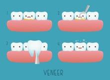 Dente do folheado de dental Foto de Stock Royalty Free