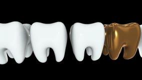 Dente dorato in una fila dei denti bianchi 3d royalty illustrazione gratis