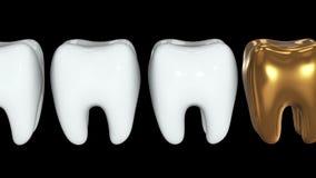 Dente dorato in una fila dei denti bianchi 3d illustrazione di stock