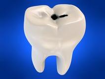 Dente humano com cárie Fotografia de Stock Royalty Free
