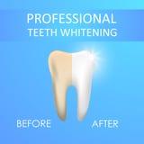 Dente profissional dos dentes que claream, o saudável e o amarelo Fotografia de Stock