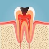 Dente umano con la carie azione Fotografia Stock