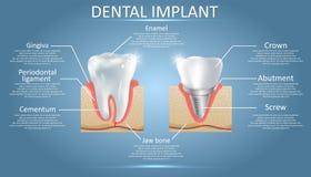 Dente umano e impianto dentario, manifesto educativo di vettore illustrazione vettoriale