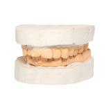 Dentes Fotografia de Stock