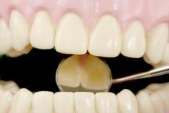Dentes Foto de Stock Royalty Free