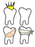 Dentes ajustados Fotografia de Stock Royalty Free
