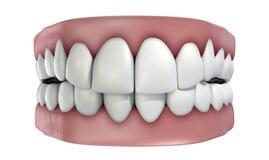 Dentes ajustados isolados Foto de Stock