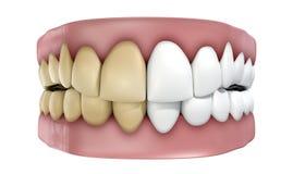Dentes ajustados isolados Imagem de Stock Royalty Free