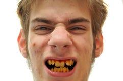 Dentes amarelos Fotos de Stock