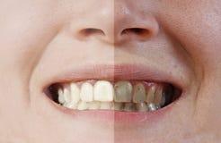 Dentes antes e depois fotos de stock royalty free