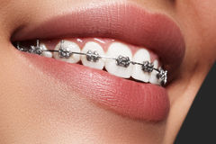 Dentes brancos bonitos com cintas Foto dos cuidados dentários Sorriso da mulher com acessórios ortodontic Tratamento da ortodonti imagem de stock