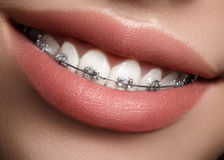Dentes brancos bonitos com cintas Foto dos cuidados dentários Sorriso da mulher com acessórios ortodontic Tratamento da ortodonti imagens de stock