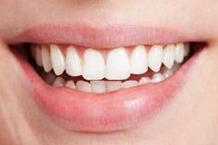 Dentes brancos de sorriso fotografia de stock