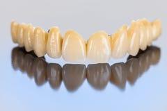 Dentes cerâmicos - ponte dental imagem de stock