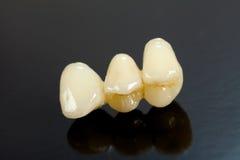 Dentes cerâmicos pressionados Fotografia de Stock