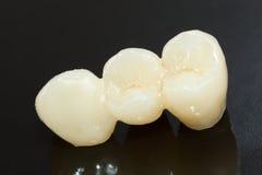 Dentes cerâmicos pressionados Imagens de Stock Royalty Free