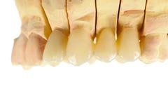 Dentes cerâmicos pressionados Foto de Stock Royalty Free