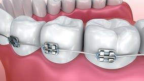 Dentes com as cintas isoladas no branco Medicamente exato filme
