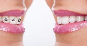 Dentes com cintas Imagens de Stock Royalty Free