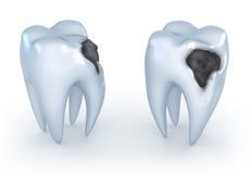 Dentes com cáries Fotografia de Stock