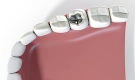 Dentes com enchimento da ligação Fotos de Stock Royalty Free