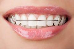 Dentes com retentor Fotografia de Stock