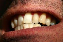 Dentes curvados Fotografia de Stock Royalty Free