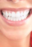 Dentes da mulher foto de stock