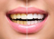 Dentes da mulher antes e depois do alvejante Fotografia de Stock