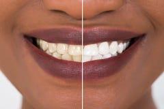 Dentes da mulher antes e depois do alvejante fotos de stock