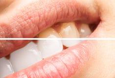 Dentes da mulher antes e depois do procedimento do alvejante Imagens de Stock
