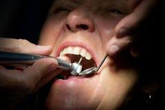 Dentes da perfuração do dentista Foto de Stock Royalty Free