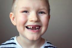 Dentes de leite faltantes do menino Fotografia de Stock