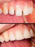 Dentes de Porcealain Fotografia de Stock