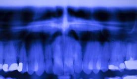 Dentes dentais que enchem a varredura do raio X dos dentistas Fotografia de Stock