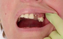 Dentes dentais, quebrados Imagens de Stock