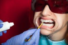 Dentes do alvejante da mulher Foto de Stock Royalty Free