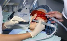 Dentes do tratamento Foto de Stock Royalty Free