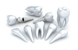Dentes e implante, conceito dental foto de stock